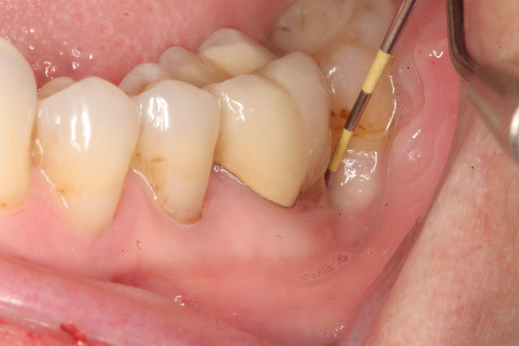Abscessed Teeth Perio Peak