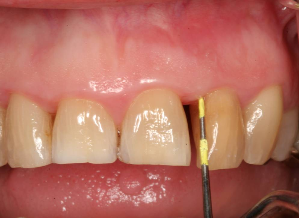 Abscessed Teeth Perio Peak